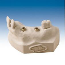 Gips IV, Resin Gips Plus clip voor implantaten 12 kg, grijze kleur