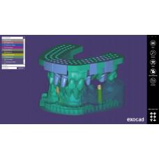 Exocad module Model Creator (modellen voor 3D printen)