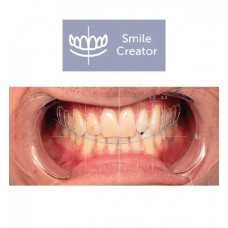 Exocad Smile Creator-module