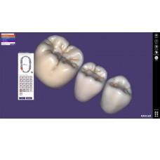 Exocad Tru Smile-module [glimlachvisualisatie2]